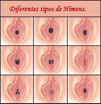 HMENS_-1